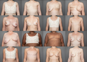 Stella McCardney Breast Cancer 300×214