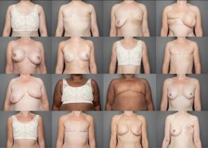 Stella McCardney Breast Cancer 300×214